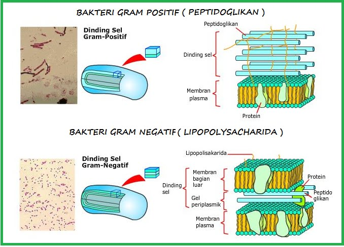 http://aguskrisnoblog.files.wordpress.com/2011/01/bakteri-gram-negatif.jpg