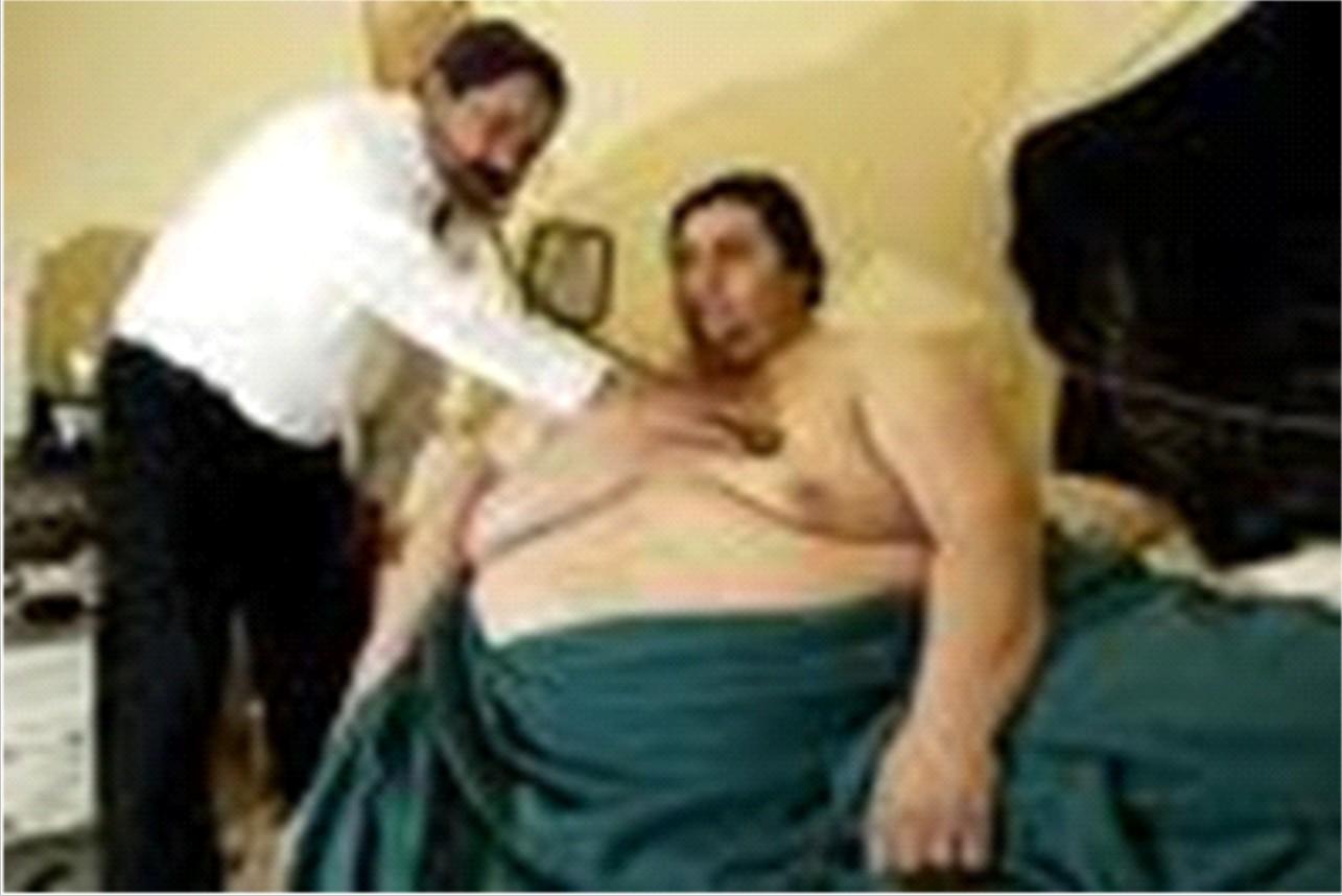 Operasi Bariatrik, Harapan Terakhir Orang Obesitas